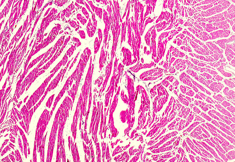 Interstitial myocarditis, light micrograph