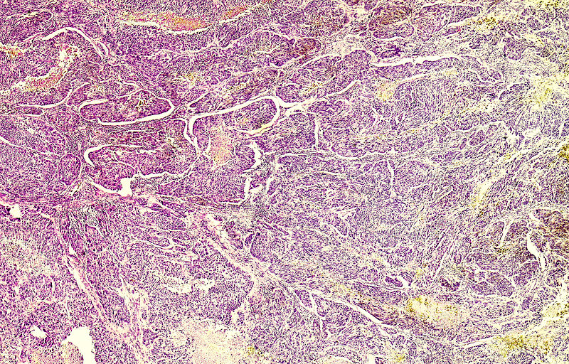 Familial malignant melanoma, light micrograph