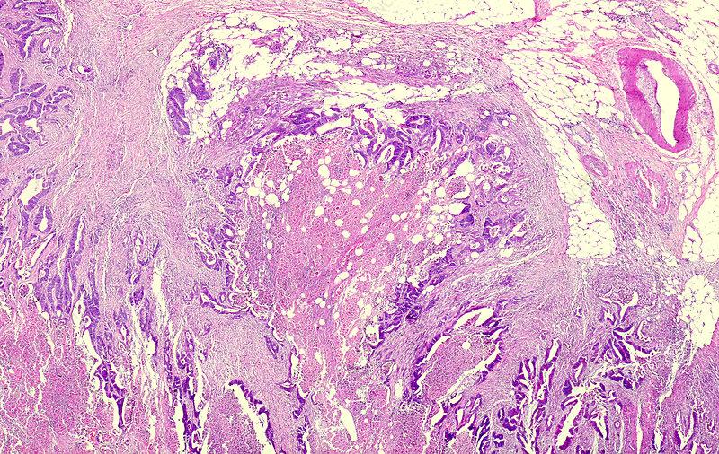Gastrointestinal stromal tumour, light micrograph