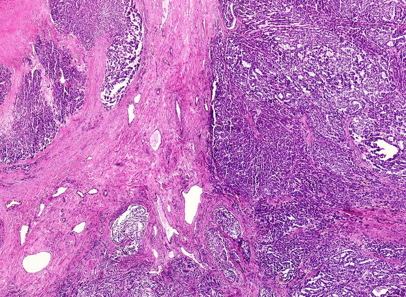 Anal cancer, light micrograph