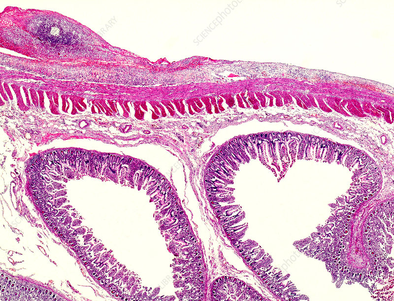 Bacterial enteritis in gut of fish, light micrograph