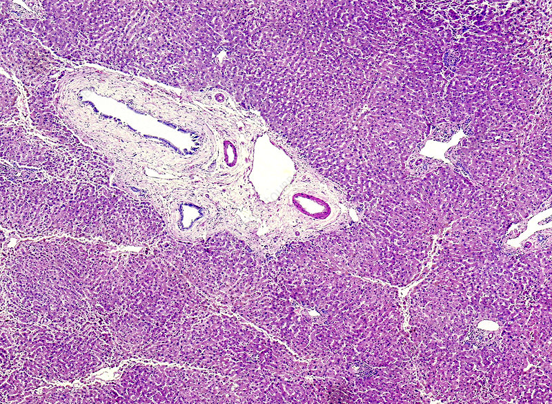 Chronic venous congestion in pig's liver, light micrograph