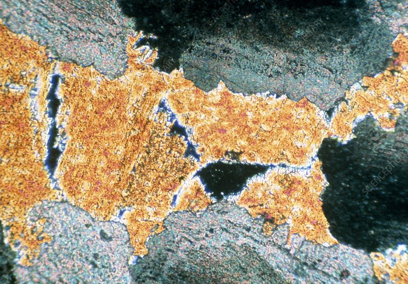 Micrograph of equant dolomite crystals/limestone