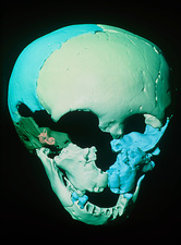Computer reconstruction of Neanderthal child skull