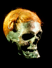 Mummified head of Osterby Man, a bog body