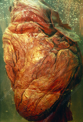 Preserved heart of the baby woolly mammoth, Dima