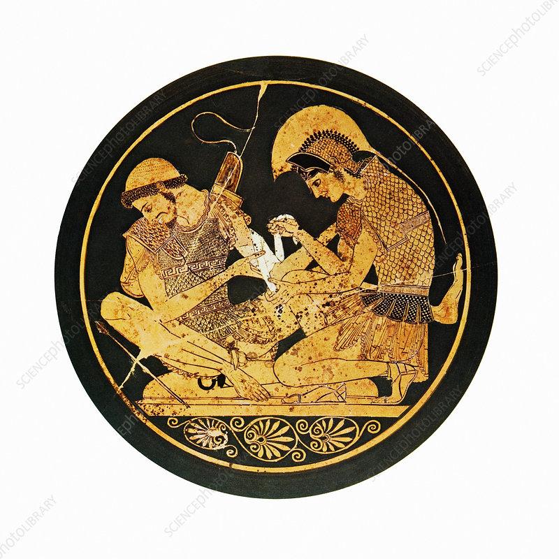 Achilles binding Patroclus' wound