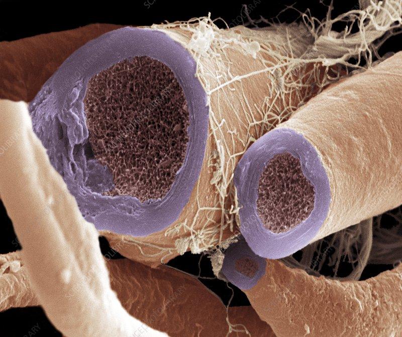 Nerve fibres, SEM