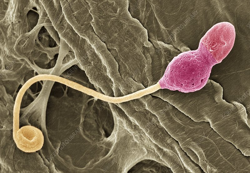 Deformed sperm cell, SEM