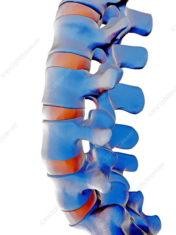 Lumbar spine, computer artwork