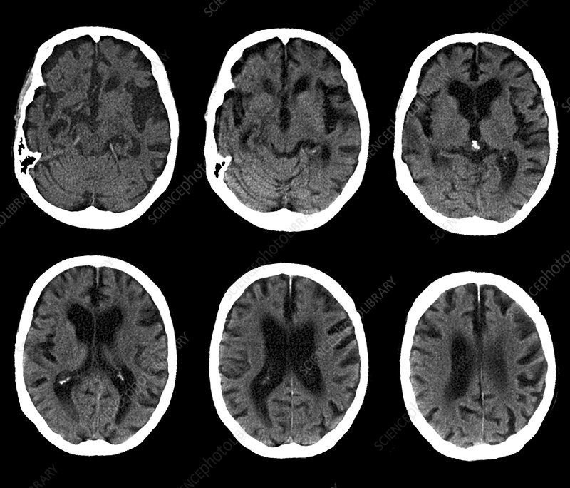How to study ct scan of brain