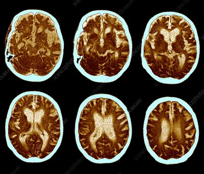 Brain with Alzheimer's disease, CT scan