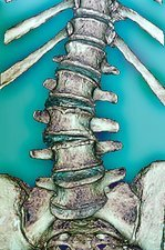 Arthritis of the spine, CT scan