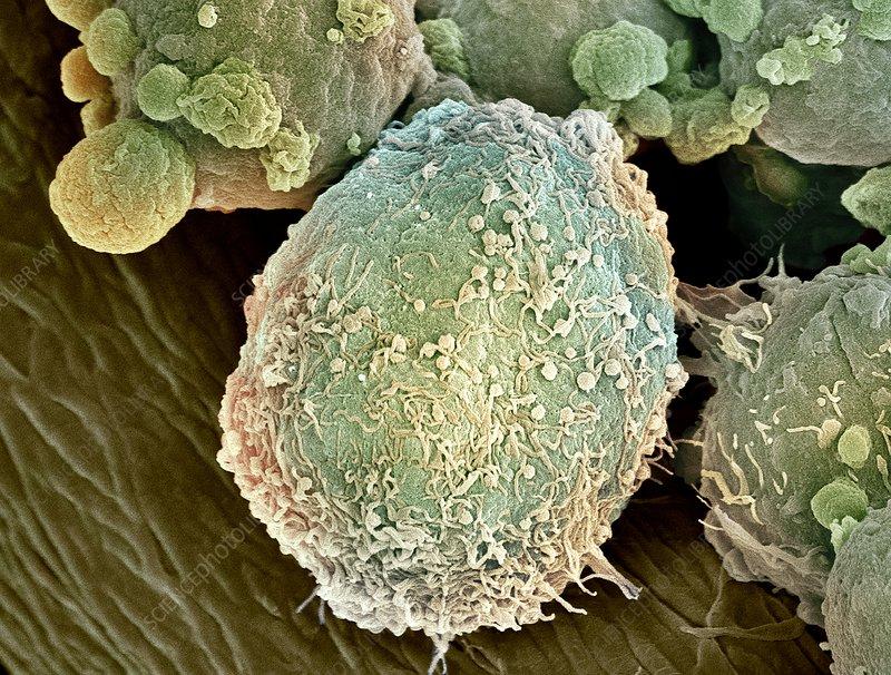 Lymphoma lymph cell sem