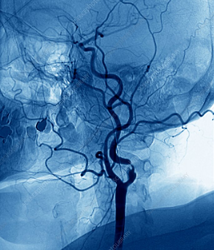 Narrowed neck artery, angiogram