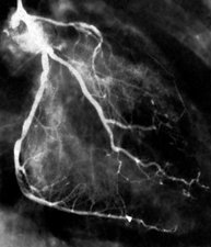 Narrowed coronary arteries, X-ray