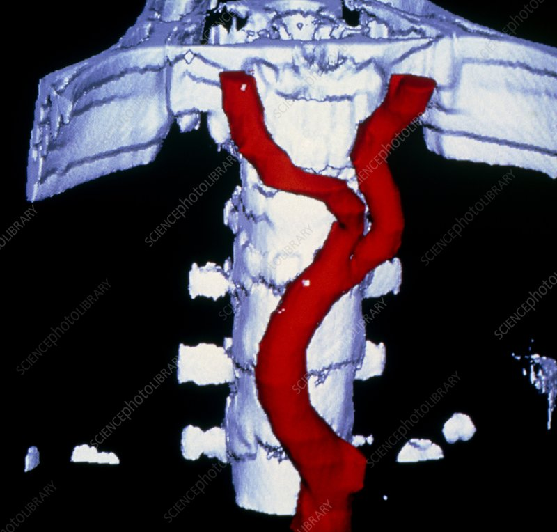 False-colour 3-D CT image of abdominal aorta