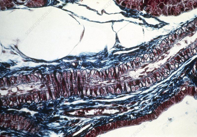 Arteriole - Stock Image F001/2090 - Science Photo Library