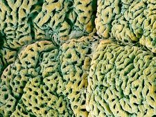 Stomach lining with gastric pits, SEM