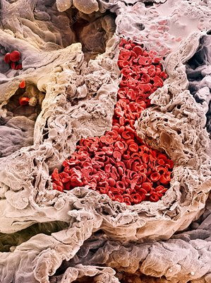 Lung blood vessel, SEM
