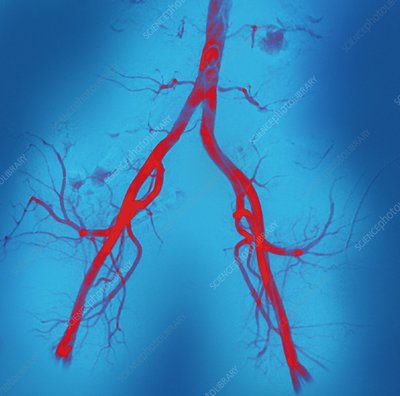 Normal abdominal arteries, angiogram