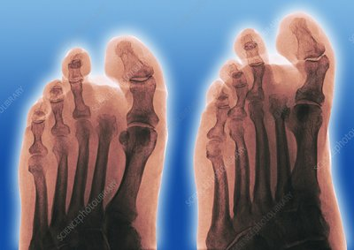 Amputated toe, X-ray