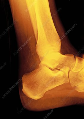 Normal ankle joint, X-ray