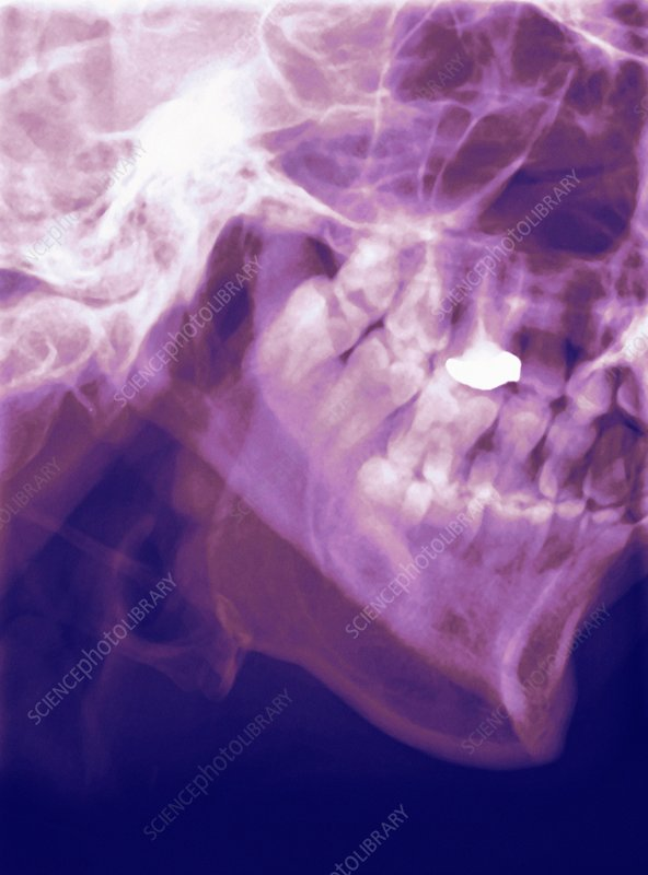 Normal lower jaw, X-ray