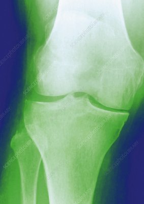 Arthrosis of the knee, X-ray