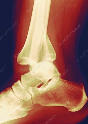 Fractured ankle, X-ray