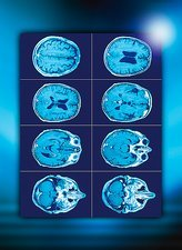 Normal brain, CT scans