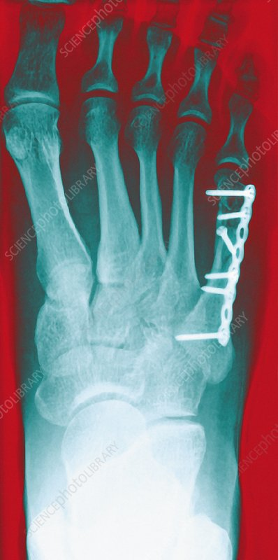Pinned foot bone fracture, X-ray