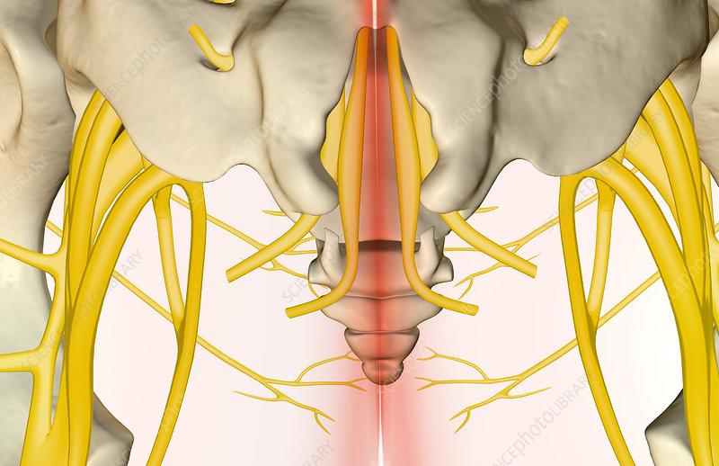 Bump On Tailbone