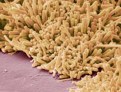 Plaque forming bacteria sem