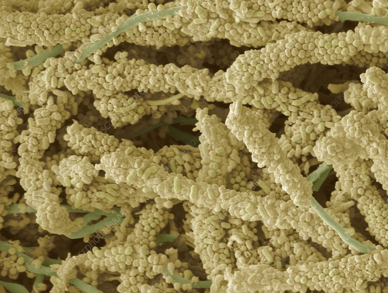 Plaque-forming bacteria, SEM