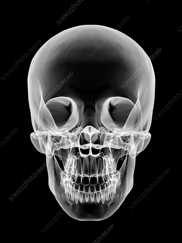 Human skull, X-ray artwork