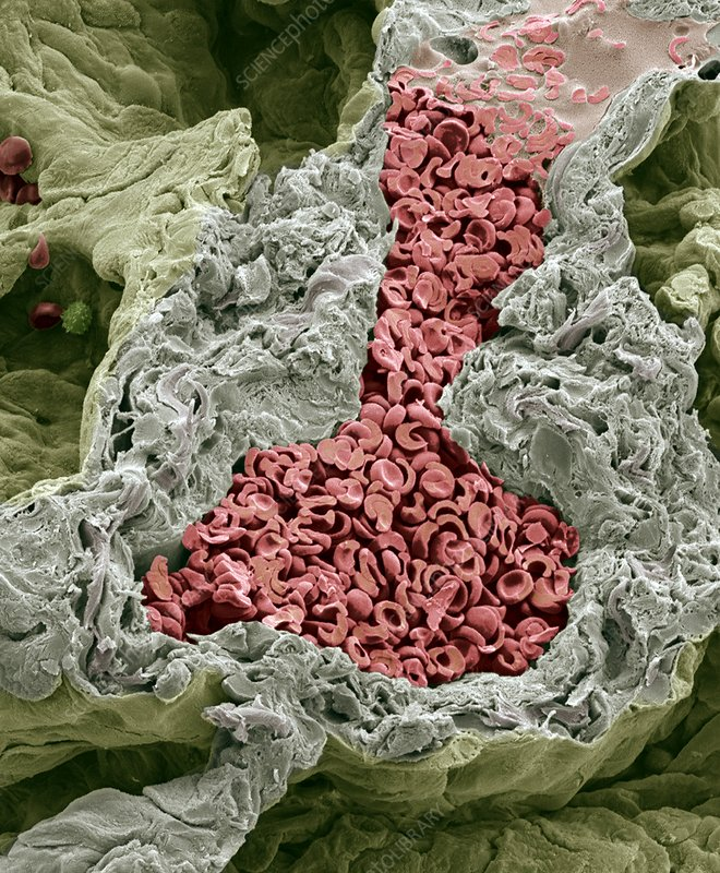 Blood vessel in the lung, SEM