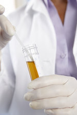 Urine sample analysis