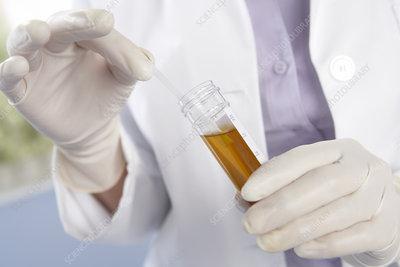 Urine sample analysis
