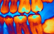 Teeth with fillings, X-ray