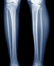 Normal lower legs, X-ray
