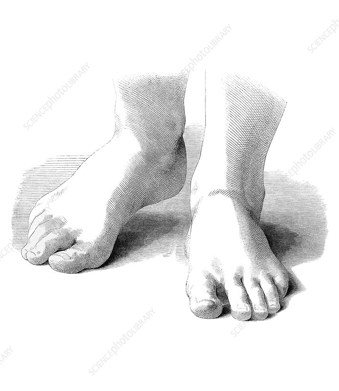 Feet, artwork