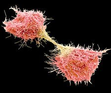 Dividing fibrosarcoma cells, SEM