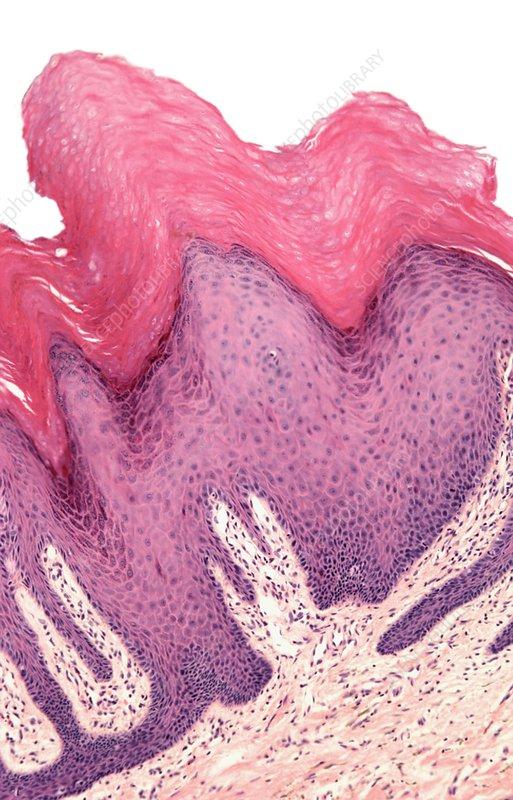 Wart, light micrograph