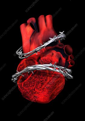 Heart disease, conceptual artwork