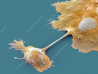 Pancreatic cancer cells, SEM