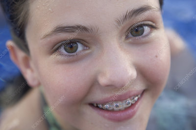 Young girl smiling with braces in swimmi
