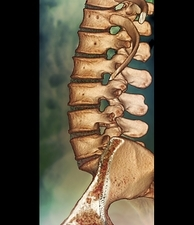 Normal spine, CT scan