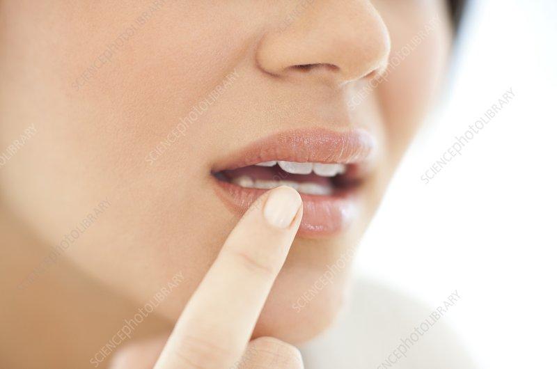 how to treat herpes viruses