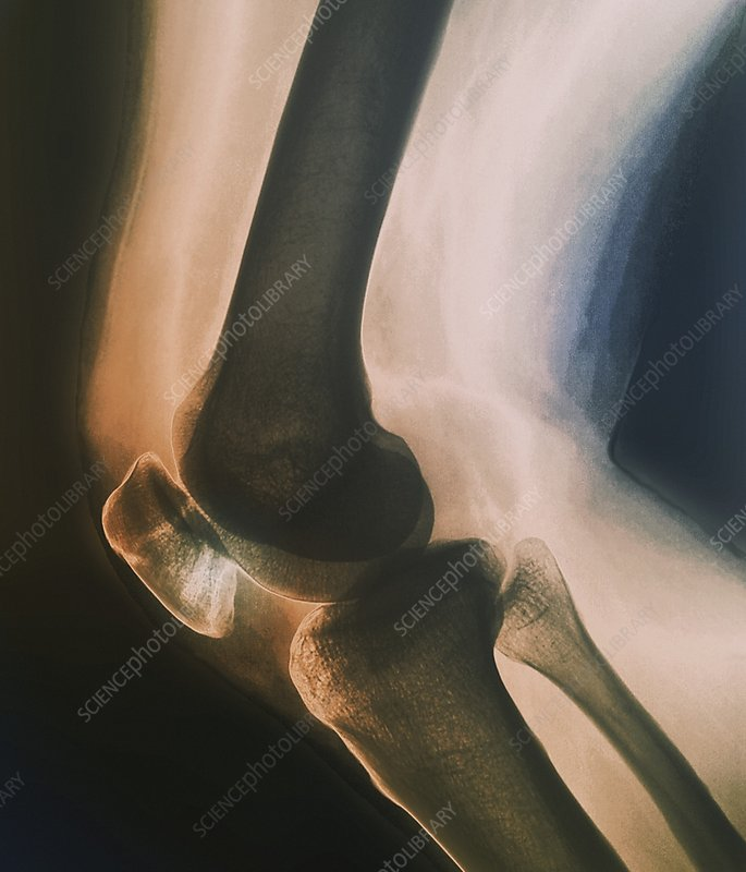 Broken knee, X-ray